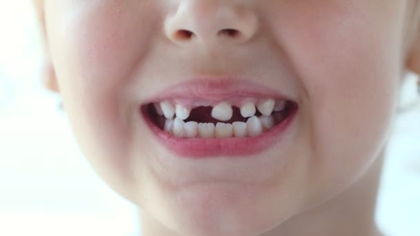 The child shows a wobbling baby tooth. Shakes a tooth language. He touches the tooth with his hand. Toothless smile. The girl tries to pull out a tooth herself. Close up