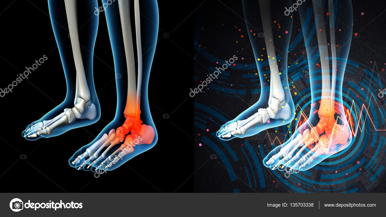 3d render human foot pain with the anatomy of a skeleton foot ...