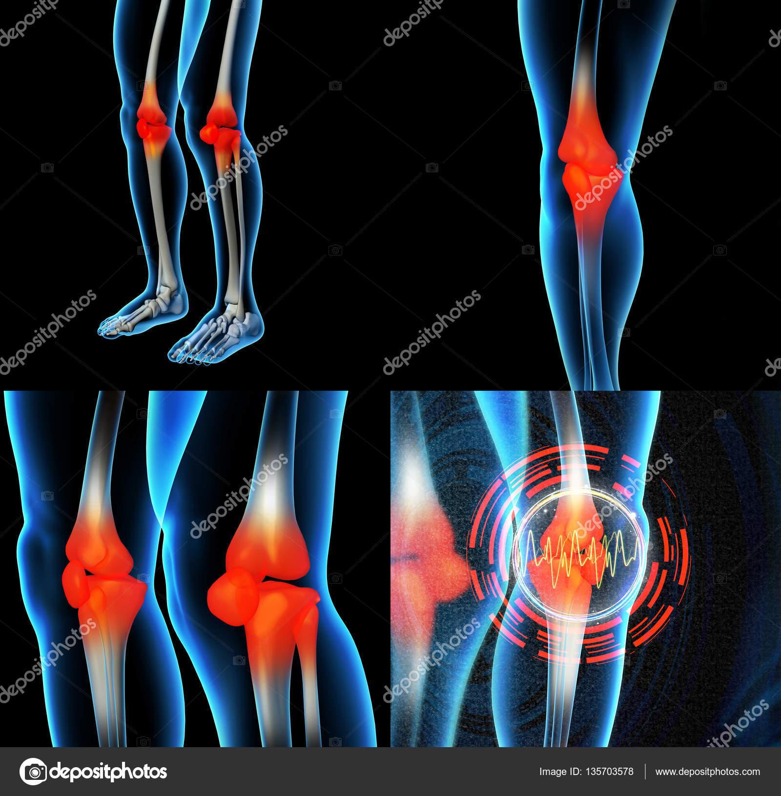 Human knee pain with the anatomy of a skeleton leg — Stock Photo ...