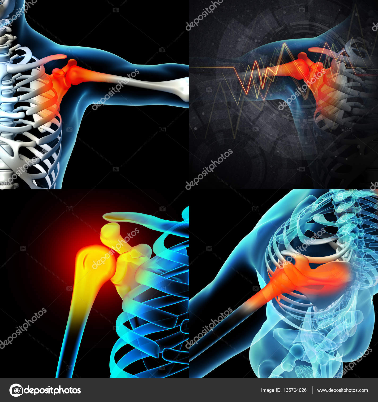3D rendering human shoulder pain with the anatomy of a skeleton ...