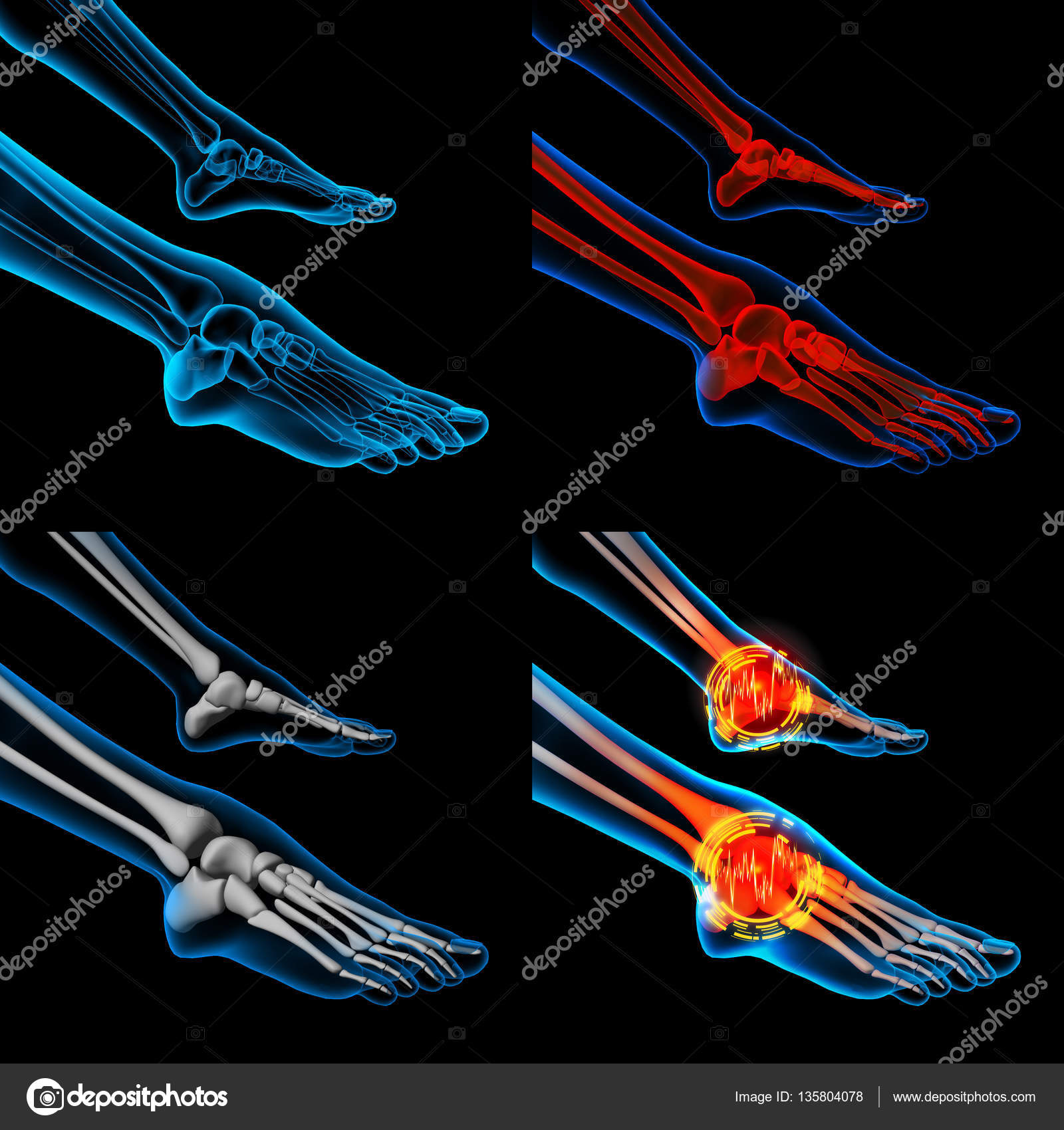 3D rendering human foot pain with the anatomy of a skeleton foot ...