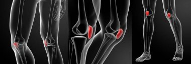 3d rendering illustration of the patella bone