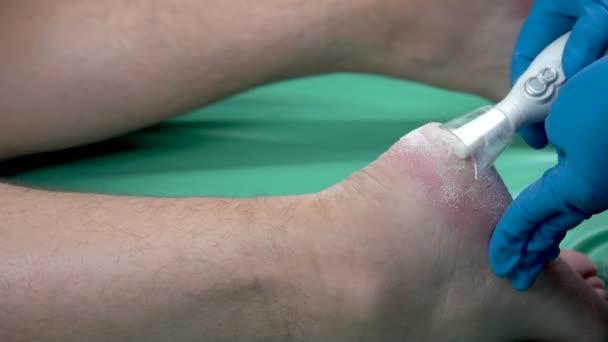 Callus Peeling mit professionellen Pediküre-Tool. Entfernen harter, schwieliger Haut an den Füßen.