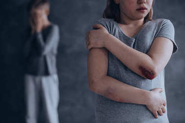 Little children being physically abused