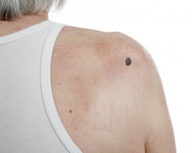 Skin cancer in men.