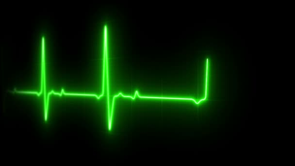 monitor EKG srdce