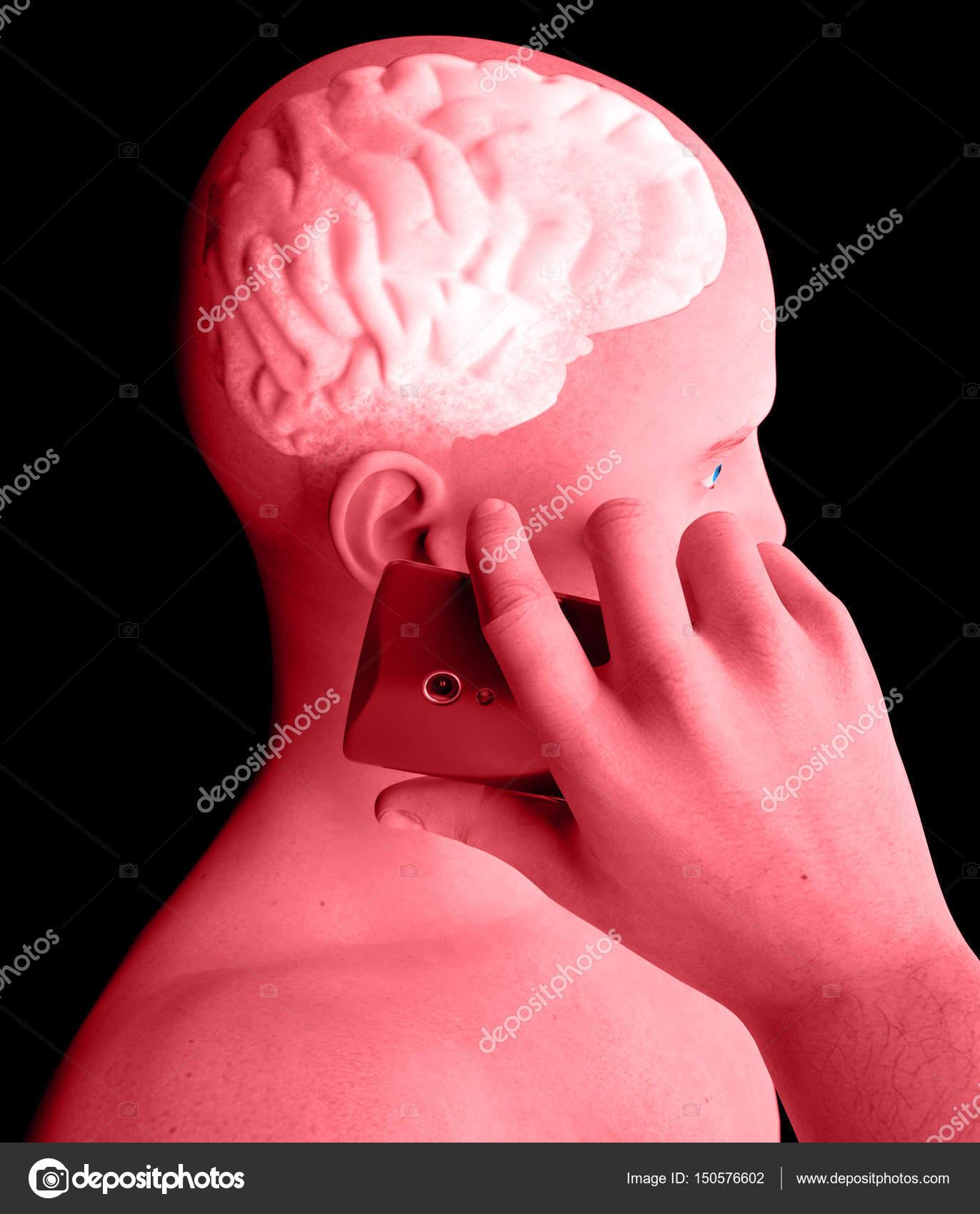 Gehirn, Mann mit Handy, Gehirn Probleme Ursache von Tumor ...
