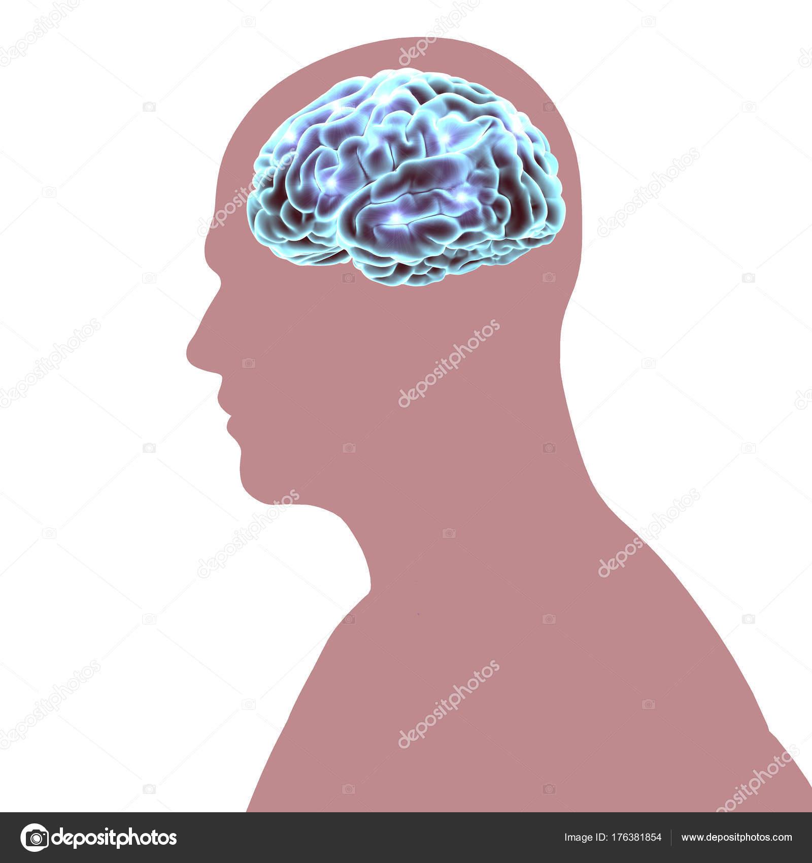 Gehirn Degenerativen Erkrankungen Alzheimer Parkinson Menschlicher ...