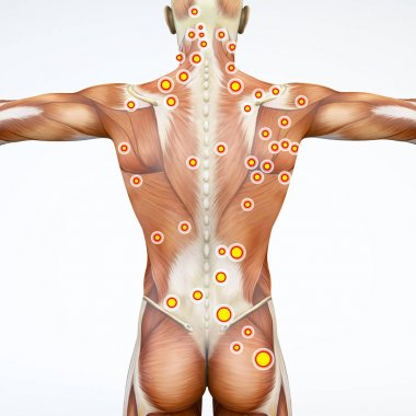 Back view of a man and his trigger points. Anatomy muscles. 3d rendering. Myofascial trigger points, are described as hyperirritable spots in the fascia surrounding skeletal muscle. Palpable nodules in taut bands of muscle fibers