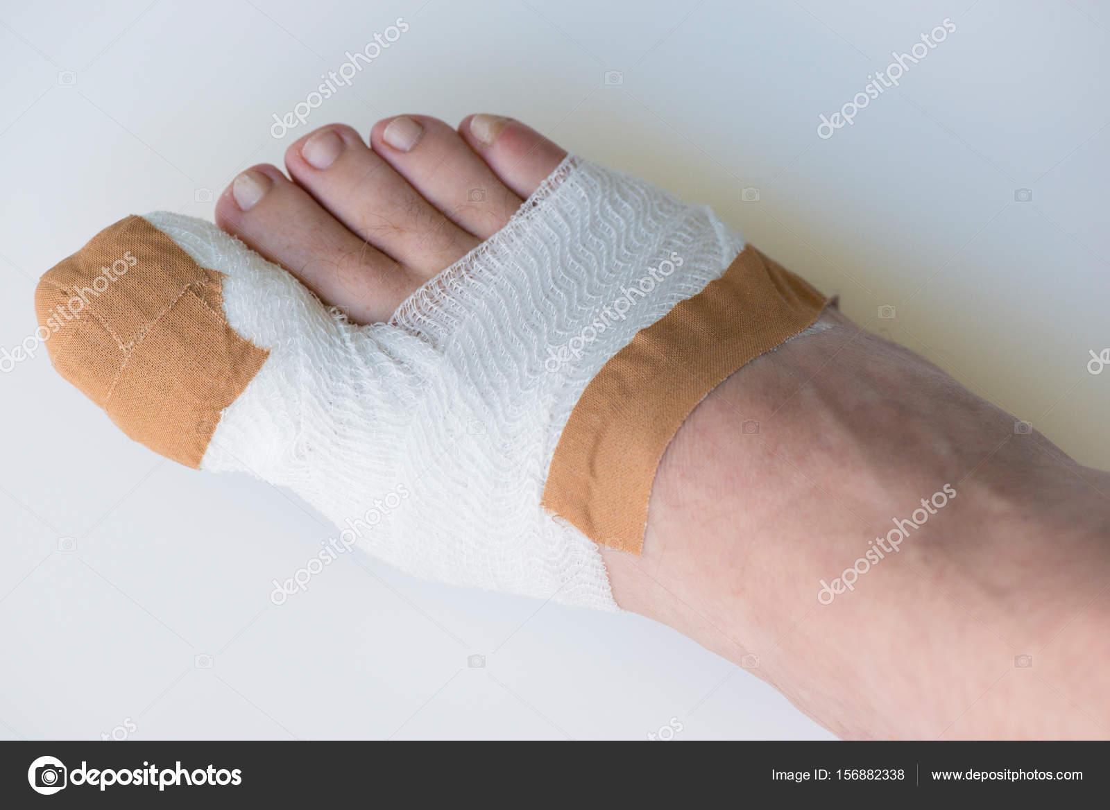 Operación del dedo del pie en el dedo gordo del pie en el hospital ...