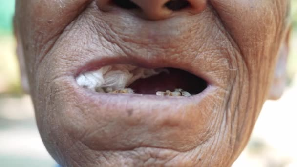 Close up of Elderly man biting on cotton gauze after tooth extraction, Tooth decay from not like brushing teeth. Oral care concepts.