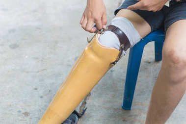 New aluminium prostheses legs for amputee patient