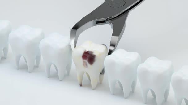 Animation der Entfernung des kranken Zahnes, 3D-Darstellung.