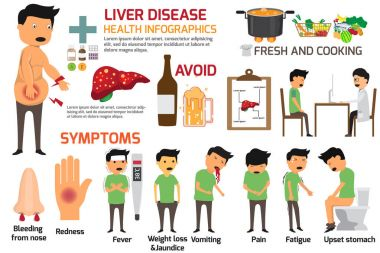 liver disease vector infographics. Sign and symptoms of liver di