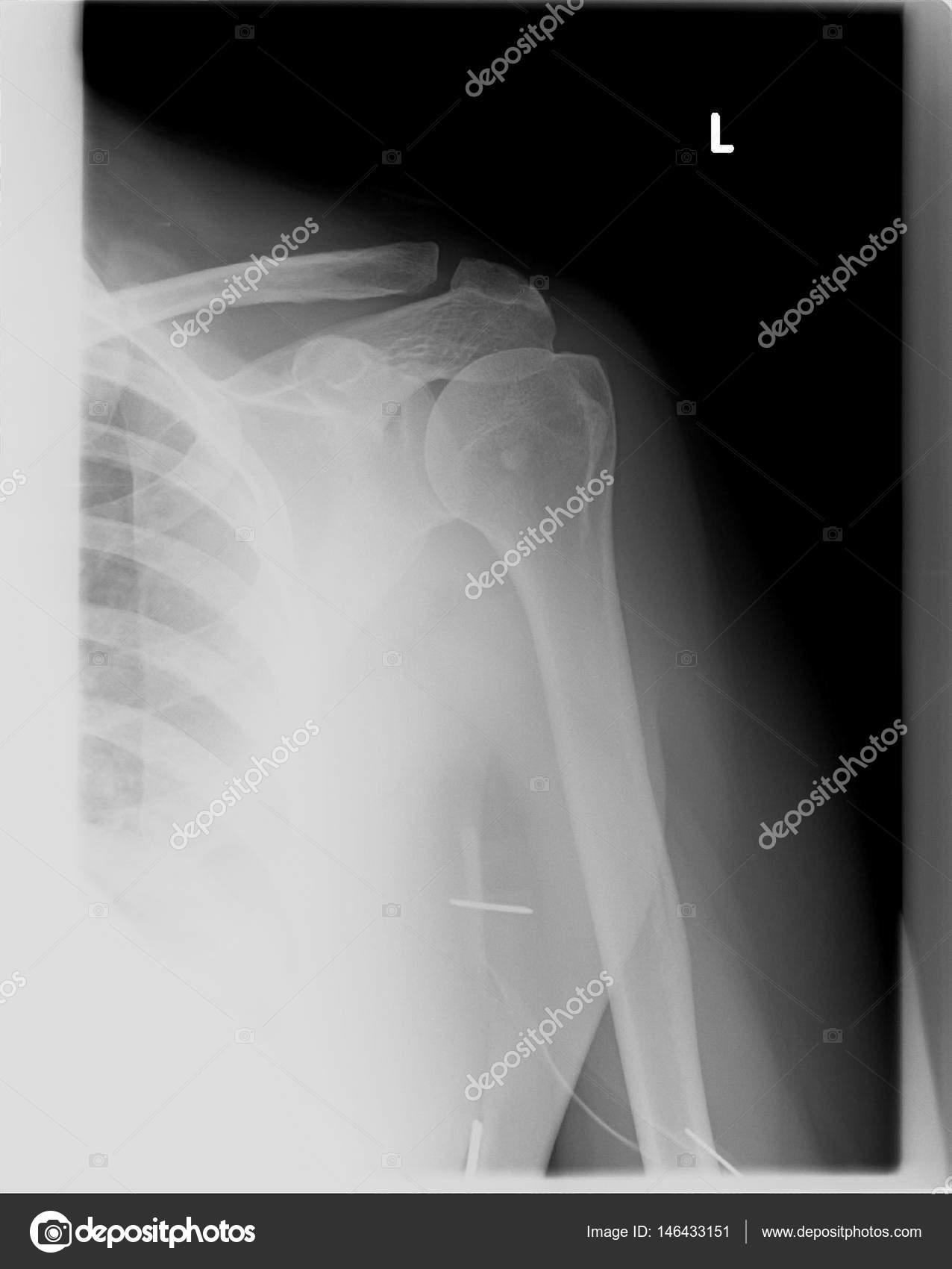 Radiografía o Mri - resonancia magnética del hombro izquierdo y una ...