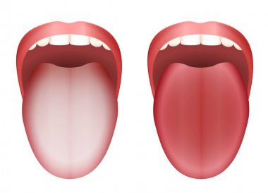 Coated Tongue Clean Tongue