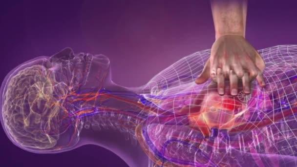 Nyomást gyakorolni a szívre és újraindítani a vérkeringést a szívmegállás következtében kialakuló vérkeringés biztosítása érdekében
