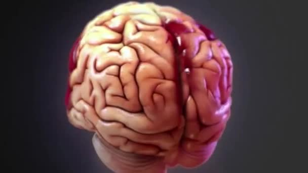 Traumatic brain injury , also known as intracranial injury, occurs when an external force injures the brain