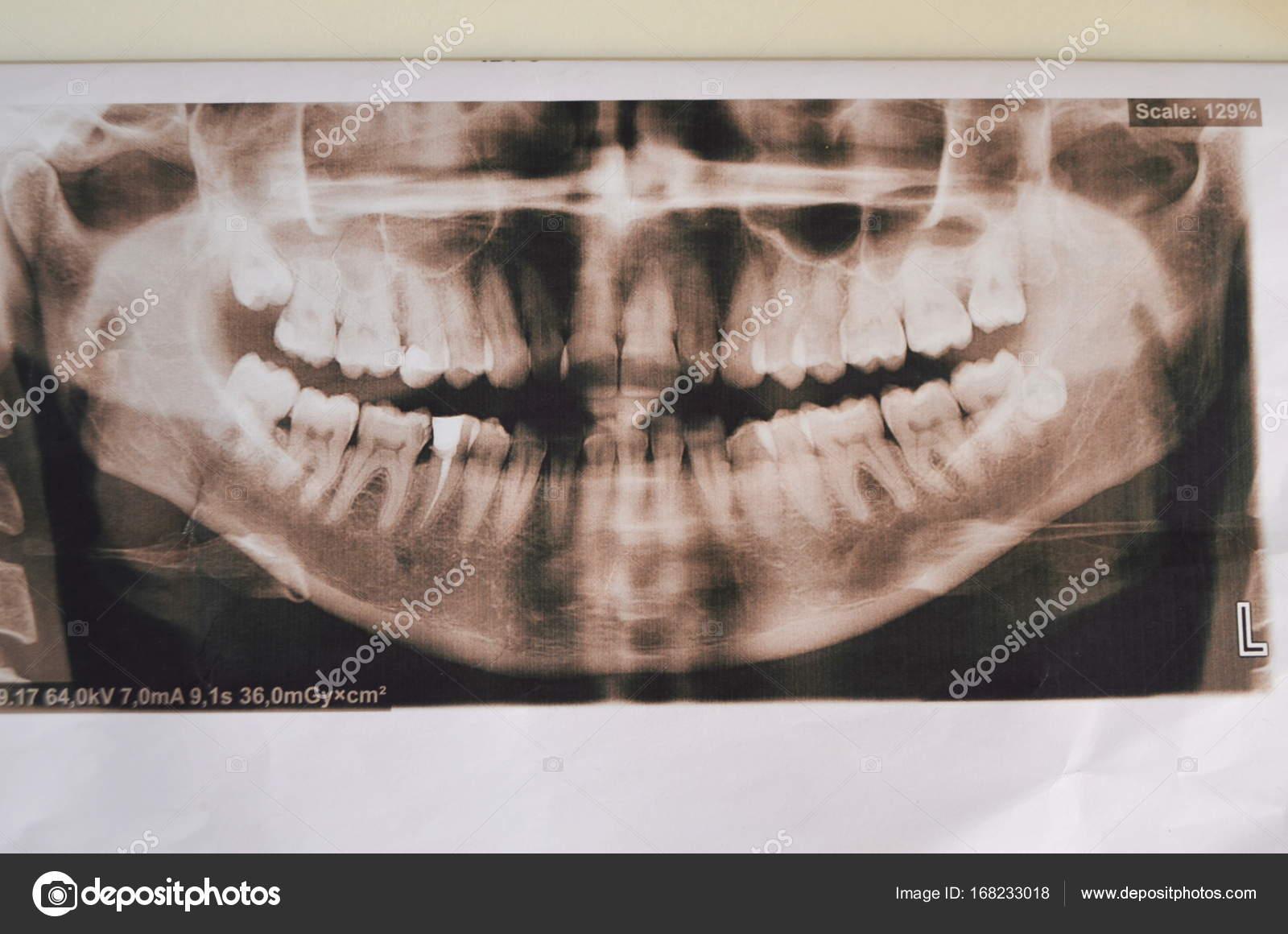 Foto panorámica de los dientes supercomplete. rayos x — Foto de ...