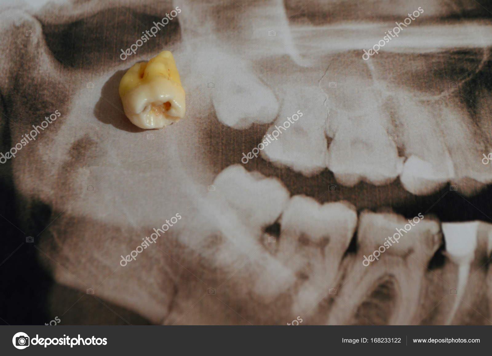 Foto panorámica de los dientes supercomplete. rayos x — Fotos de ...
