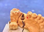 Photo Technical shots on a dental laboratory. Dentist work