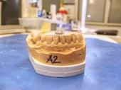 Photo Metal-ceramic dental crown is tried on an gypsum model