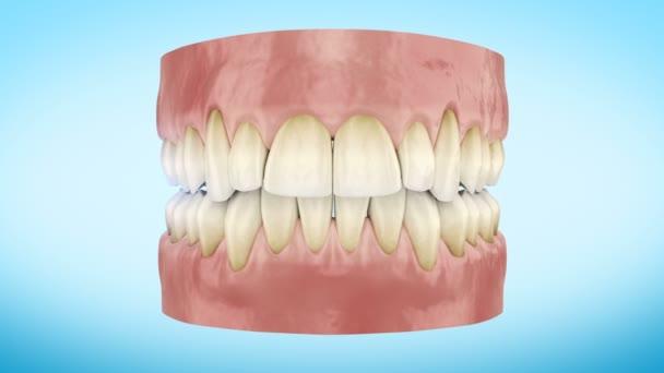 Bělení zubů postup zblízka 3d animaci. Full Hd 1920 × 1080.