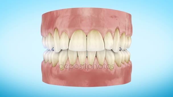 Teeth Whitening Procedure Close Up 3d Animation. Full HD 1920x1080.