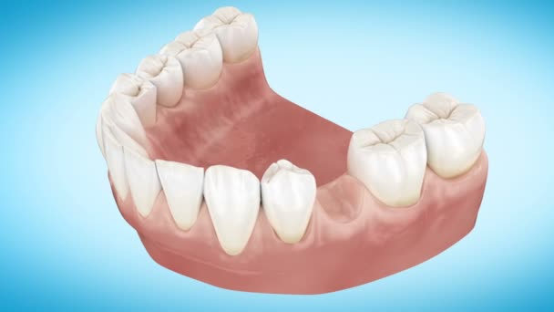 Beautiful Tooth implant installation process. Close Up 3d Animation. Full HD 1920x1080.