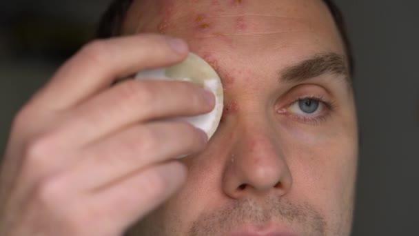 muž s herpes zoster na tváři léčí purulentní puchýře s vatovou podložkou