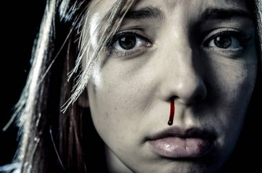 face of woman victim of serious domestic violence abuse attack nose bleeding