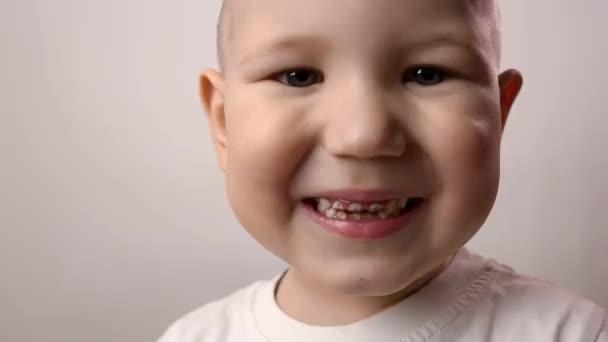 Zblízka záběr chlapeckých zubů. Zdravotní péče, zubní hygiena, zubní problémy, zubní kaz