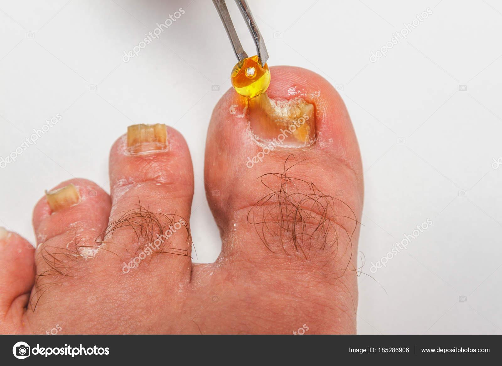 A toenail fungus — Stock Photo © dude_lea #185286906
