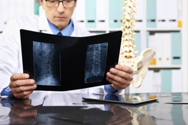 Radiologist doctor checking xray, healthcare, medical and radiol