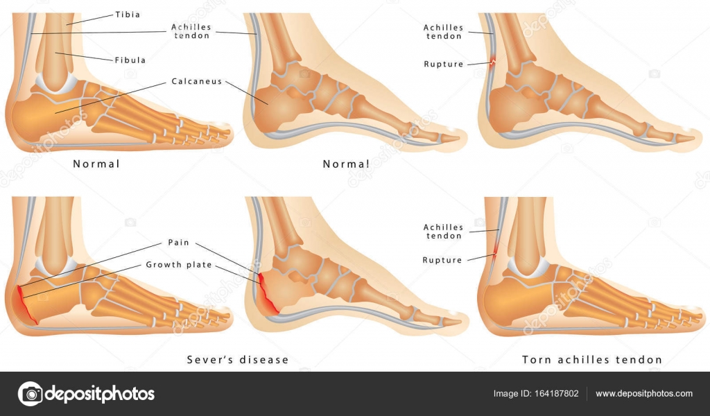 Ankle(side view) — Archivo Imágenes Vectoriales © anutuno #164187802