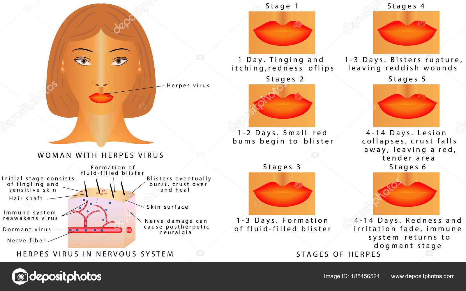 Herpes Virus Infektionen Auf Den Lippen Phasen Des Herpes Virus ...