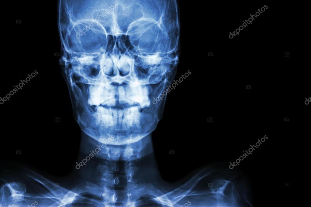 normalen menschlichen Schädel und leeren Bereich auf der rechten ...