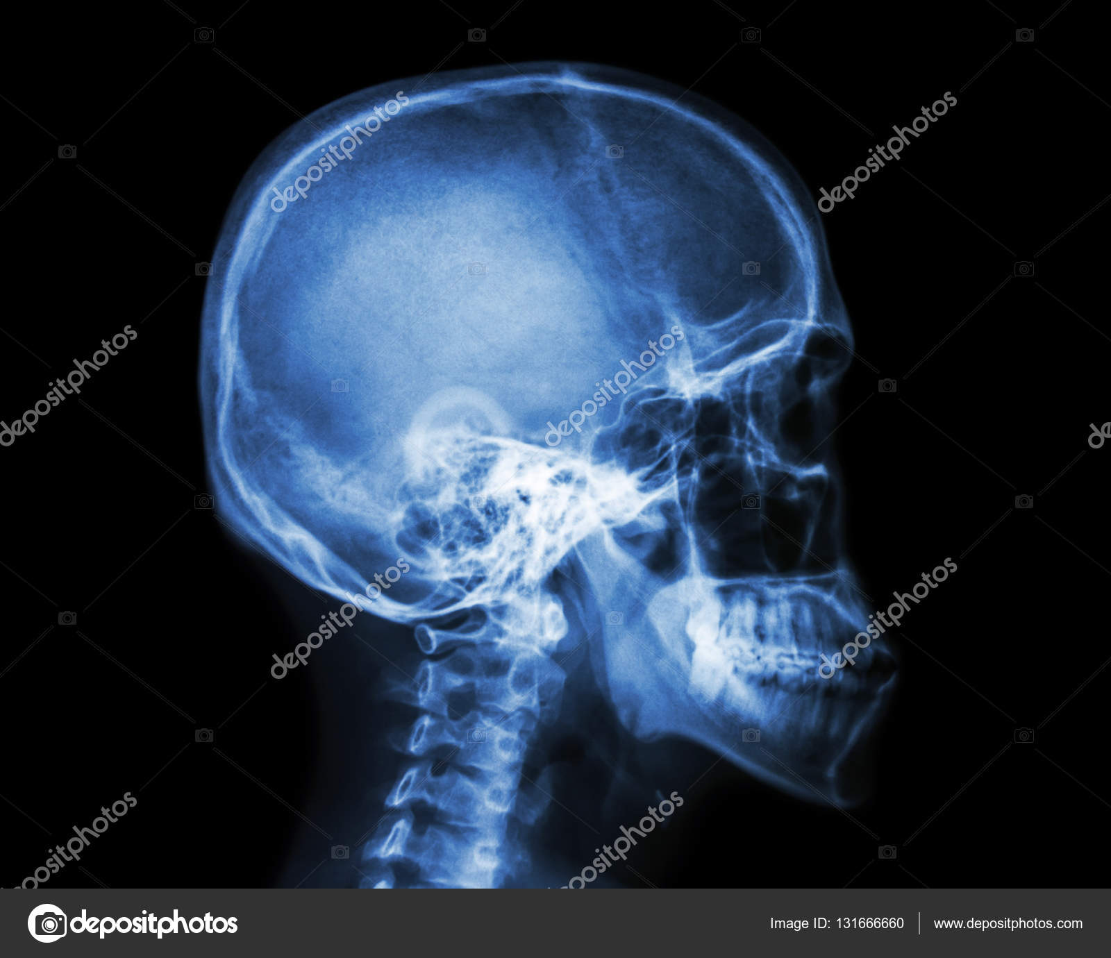 Film X Ray Skull And Cervical Spine Lateral View Stock Photo
