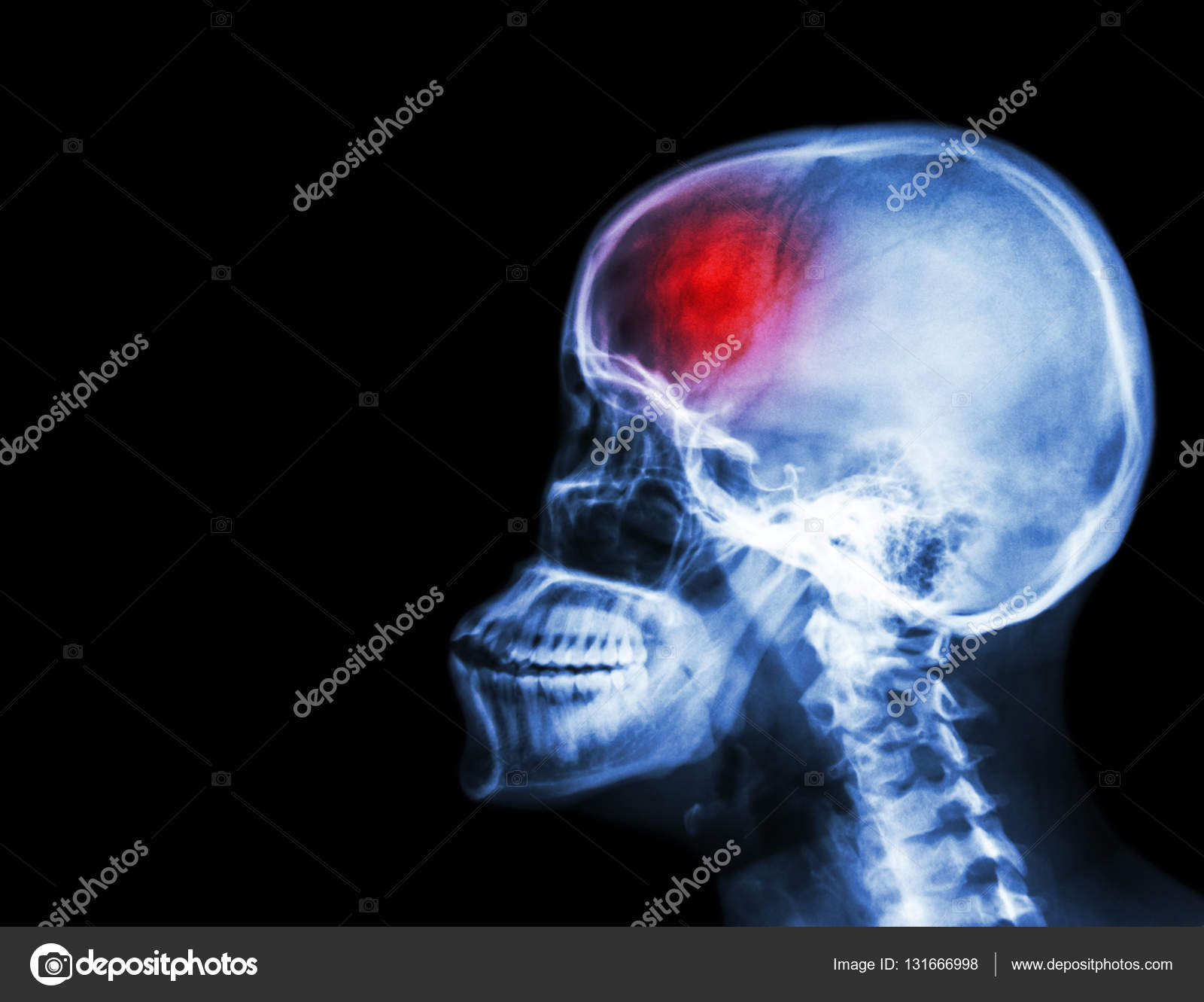 stroke film x ray skull and cervical spine lateral view and stroke cerebrovascular accident blank area at left side photo by stockdevil_666
