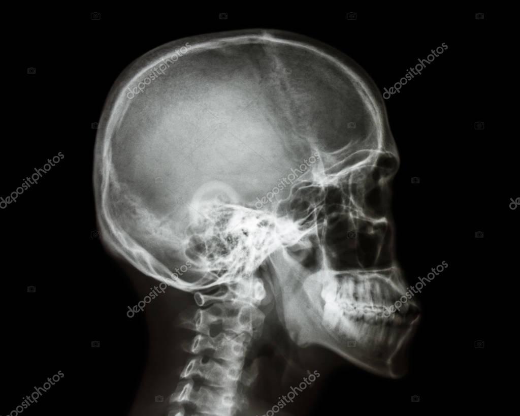 Imágenes: radiografia craneo lateral   La película ... Skull X Ray Views Merrills