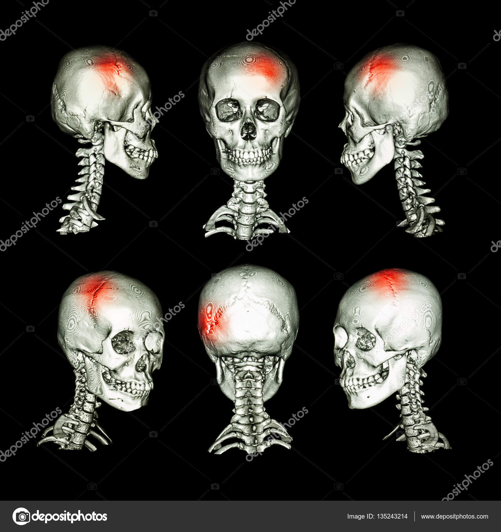 CT scan and 3D image of head and cervical spine . Use this image for ...