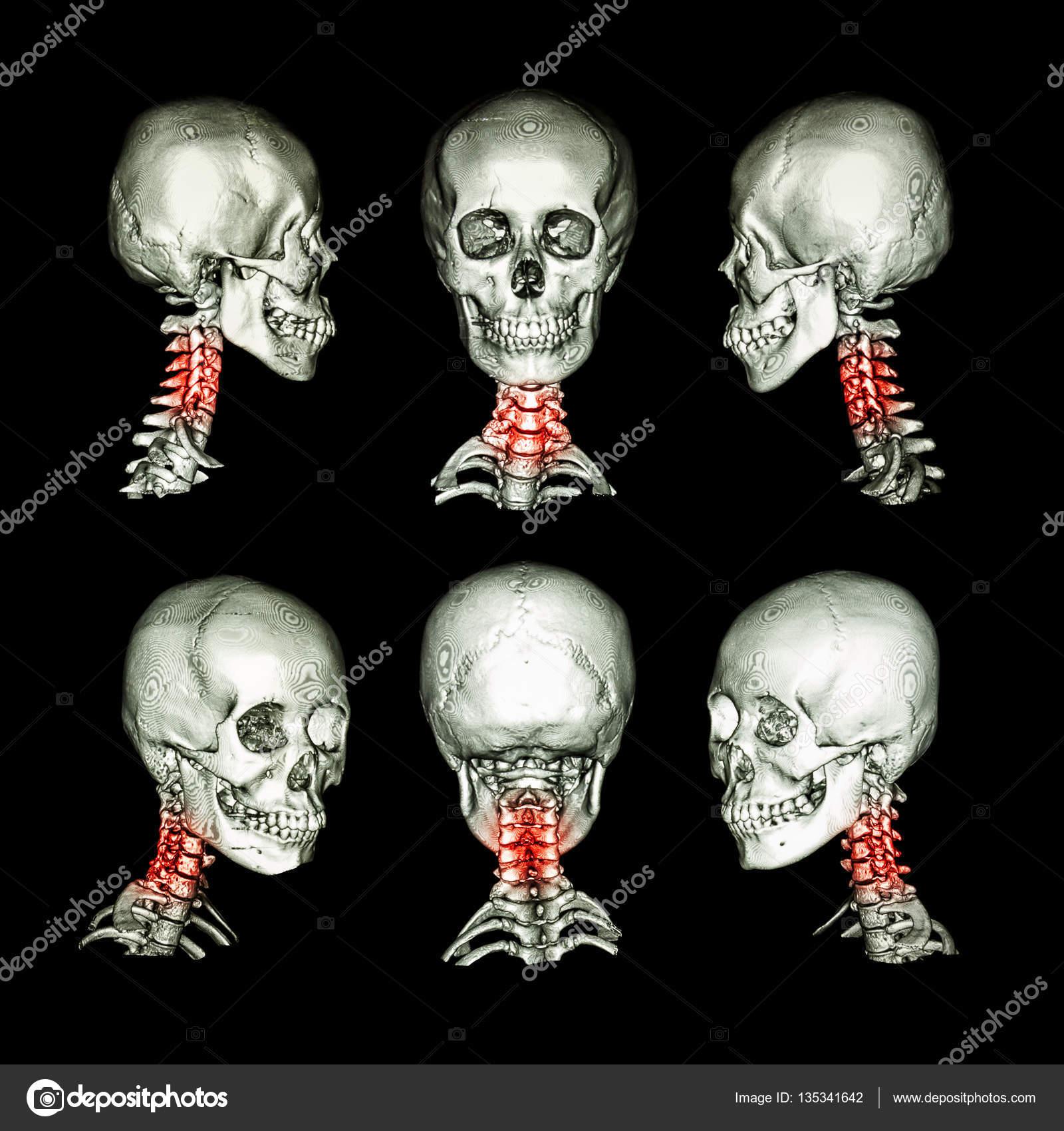 CT-Scan und 3d Bild des Schädels und des Halses. Verwenden Sie ...