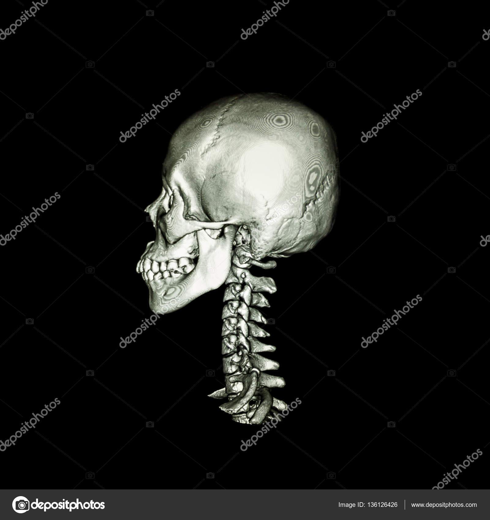 Exploración por TAC con imagen 3d de columna cervical y de cráneo ...