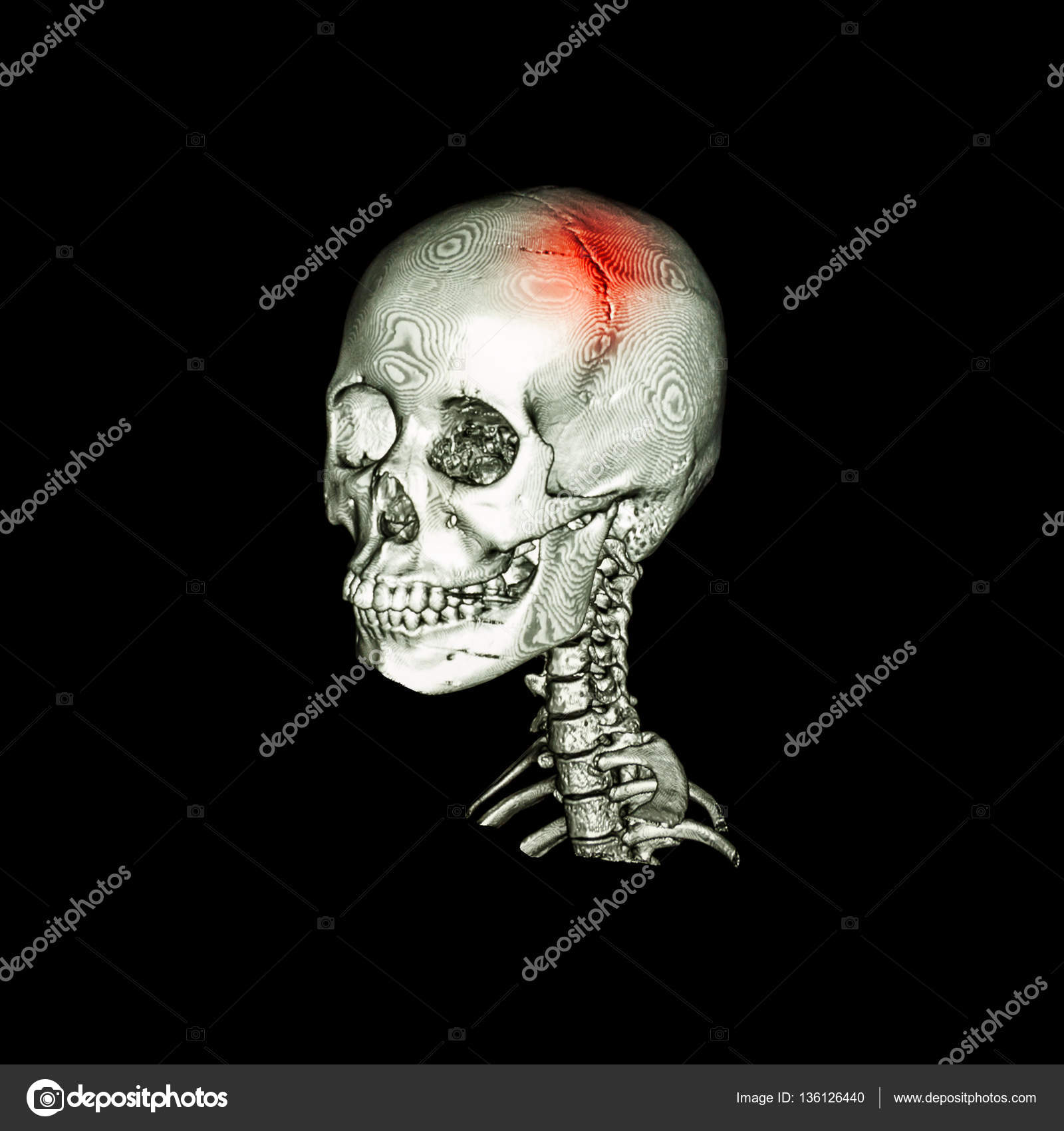 Stroke Ct Scan With 3d Image Of Human Skull And Cervical Spine