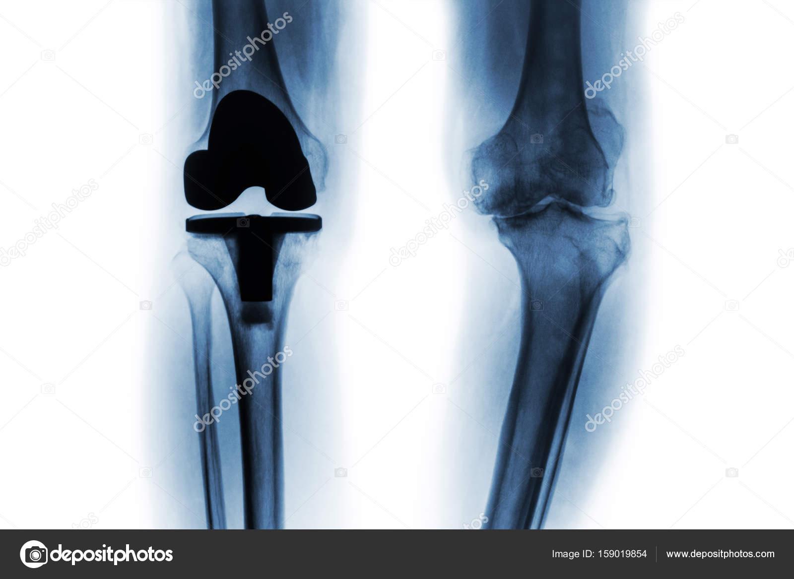 Артоз замена сустава средства боли суставах рук