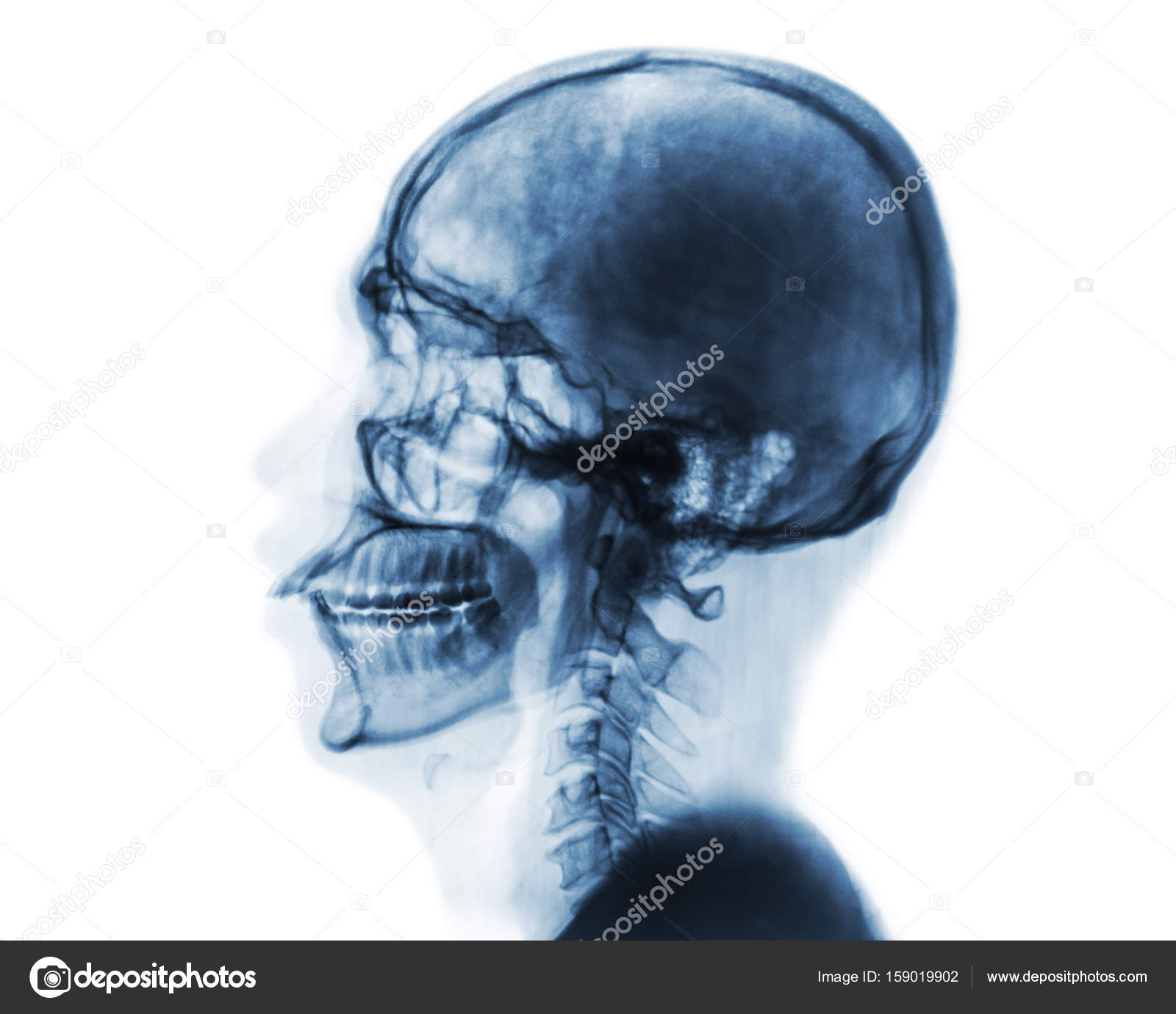 X Ray Normal Skull And Cervical Spine Lateral View Invert Color