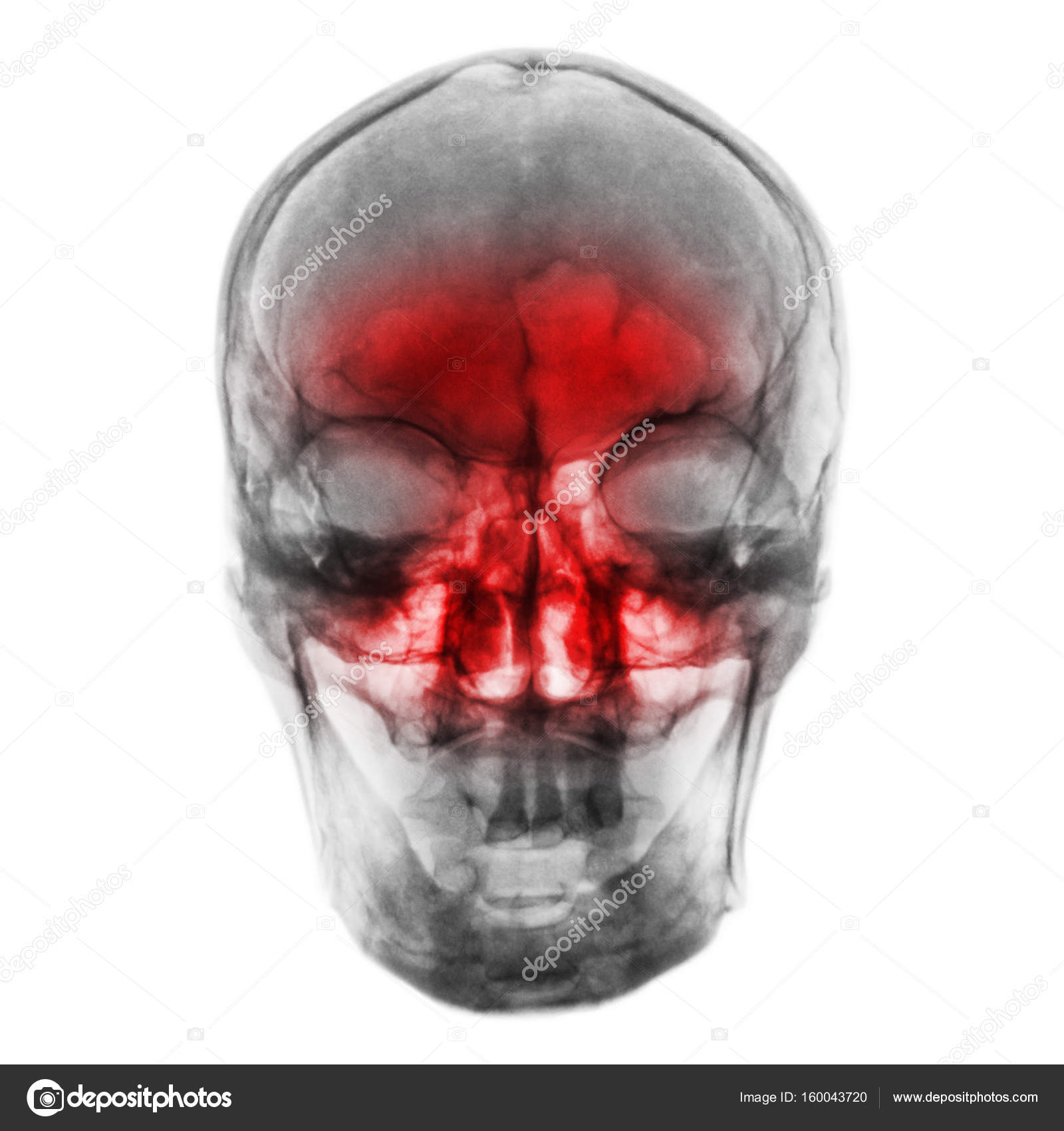Sinusitis . Film x-ray of human skull with inflamed at sinus — Stock ...