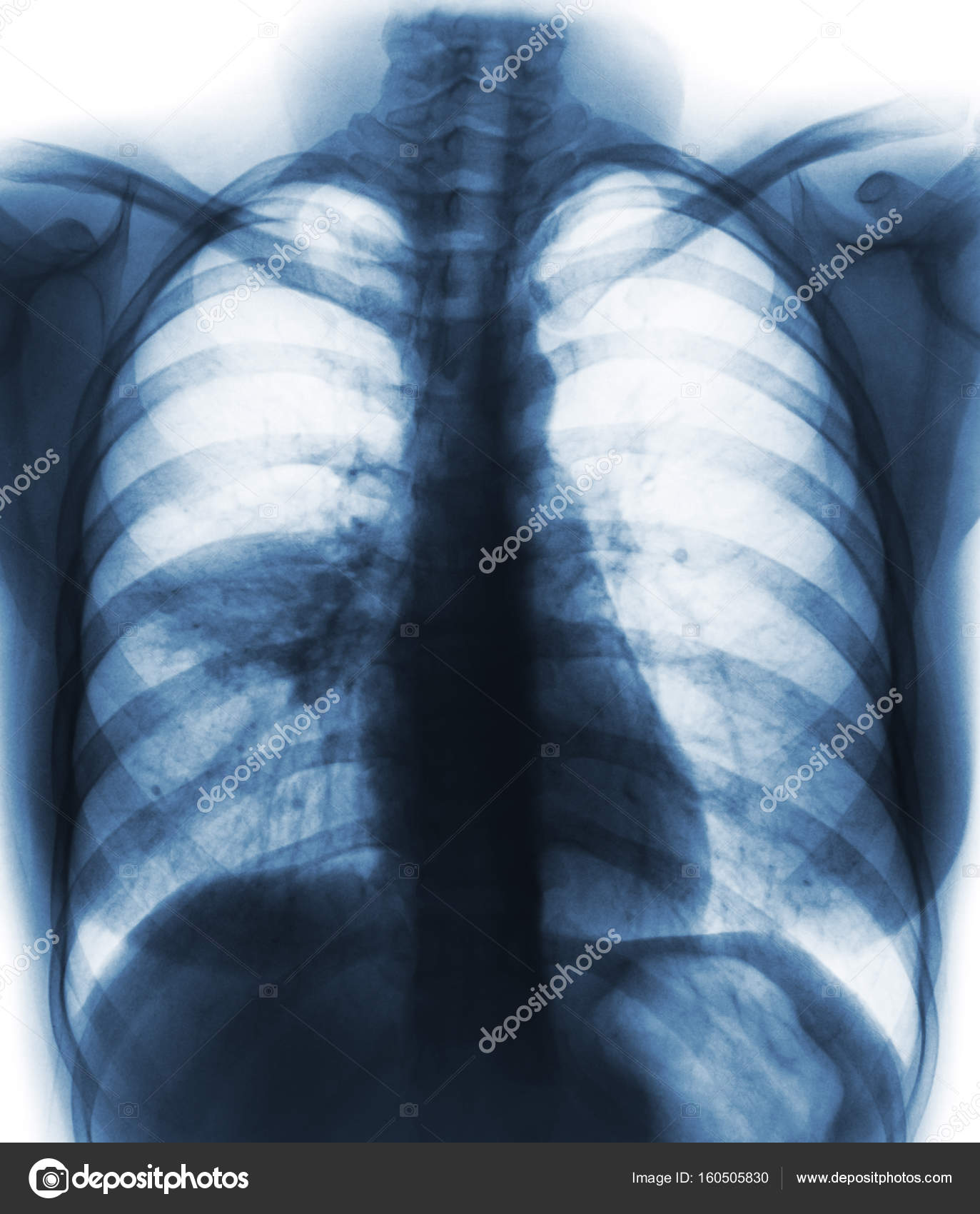 Pneumonia ( film chest x-ray show alveolar infiltrate at right ...