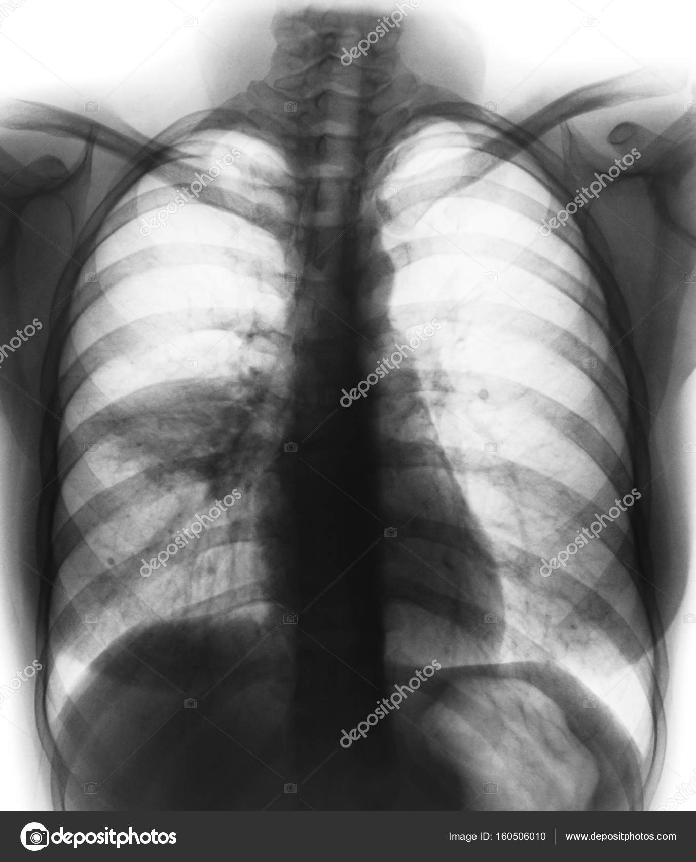 Pneumonia Film Chest X Ray Show Alveolar Infiltrate At Right