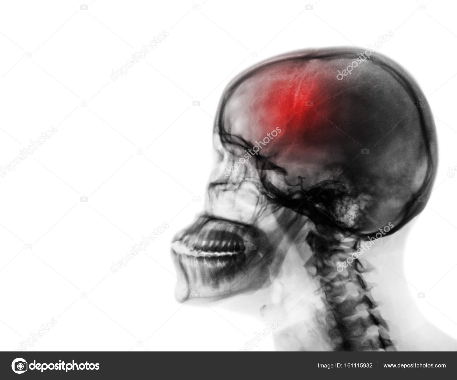 cerebrovascular accident film x ray of human skull and cervical spine